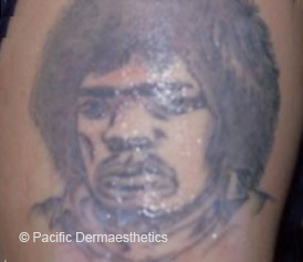 Tattoo-7x-2014-001