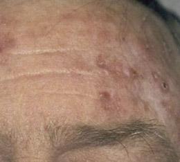 actinic-keratosis-Dr.JR