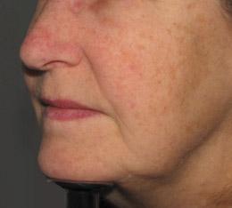 facial-redness-Dr.JR