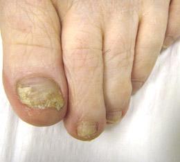 nail-fungus-treatment-Dr.JR