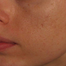 Acne Scars Acne Scarring Acne Scar Treatments Vancouver
