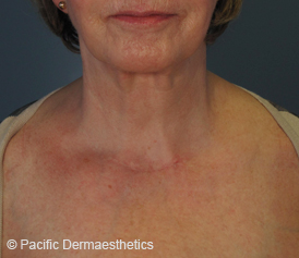 Chest-IPL-after