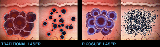 picosure_versus_qswitched_LASER