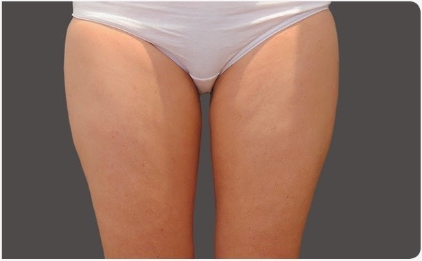 After-Coolsculpting-thighs