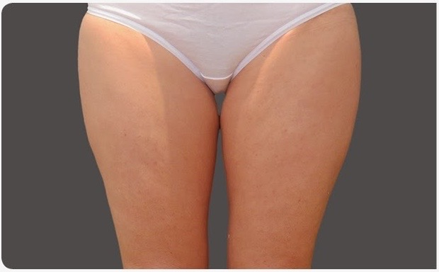 Before-Coolsculpting thighs
