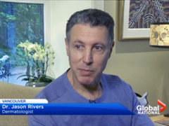 Global News Video: Dr. Jason Rivers Interviewed On Babies Being Burned By Sunscreen Product