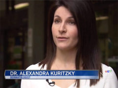 Dr. Alexandra Kuritzky interviewed on CTV news about skin cancer – July 22, 2017
