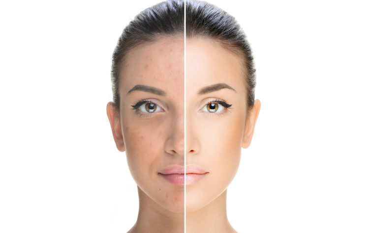 Brown Spots & Pigment - Condition header
