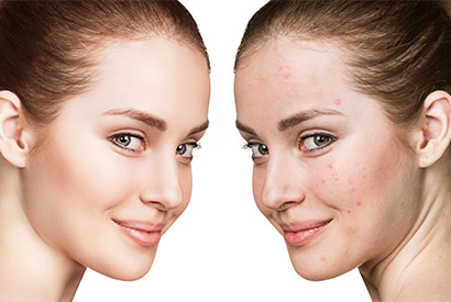 Acne - Condition header
