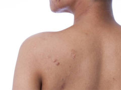 "Dr. Rivers weighs in for Global News story on ""Back acne: How you get it and how to get rid of it"""