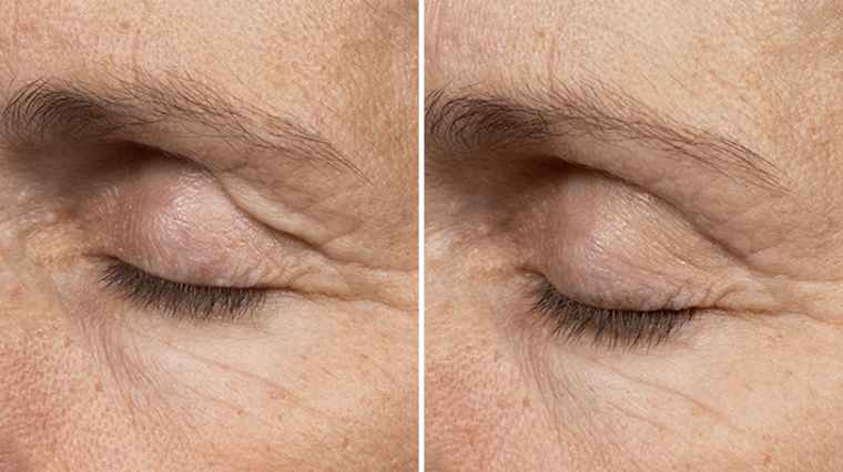 Before and after Thermage. Photos have not been retouched. Individual results may vary.